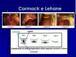 cormack e lehane