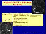 imaging dei seni e delle vene cerebrali