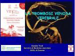 la trombosi venosa cerebrale