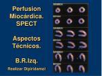 perfusion mioc rdica spect aspectos t cnicos b r izq realizar dipiridamol