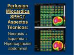 perfusion miocardica spect aspectos t cnicos necrosis isquemia hipercaptaci n abdominal