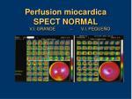 perfusion miocardica spect normal v i grande v i peque o