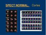 spect normal cortes