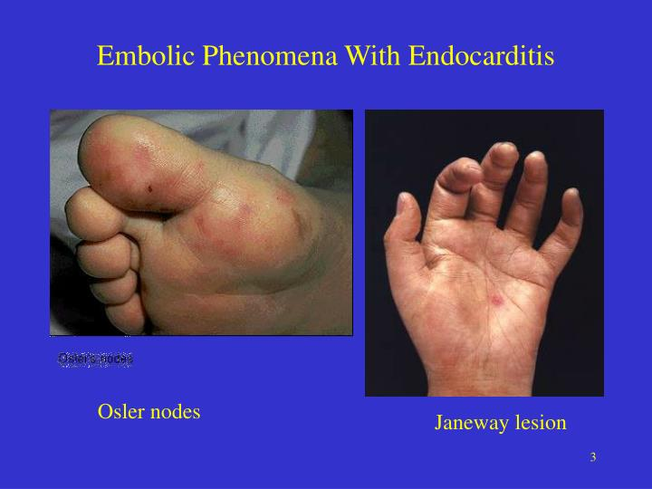 Embolic phenomena with endocarditis
