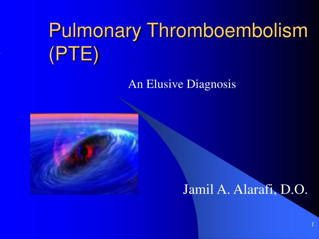 pulmonary thromboembolism pte l.