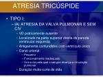 atresia tric spide24