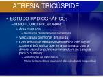 atresia tric spide51
