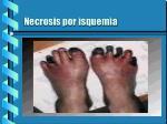 necrosis por isquemia