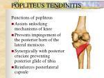 popliteus tendinitis