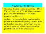 s ndrome de down
