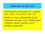 s ndrome de edwards