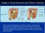 stage 3 cecal descent and colonic tacking
