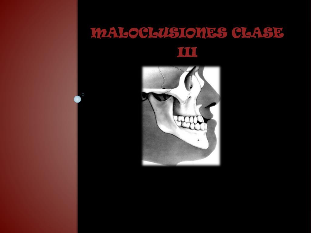 maloclusiones clase iii l.