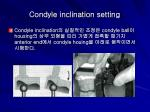 condyle inclination setting19