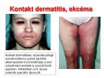 kontakt dermatitis ekc ma