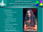 marfan syndrome http www io com cortese marfan photographs used with permission