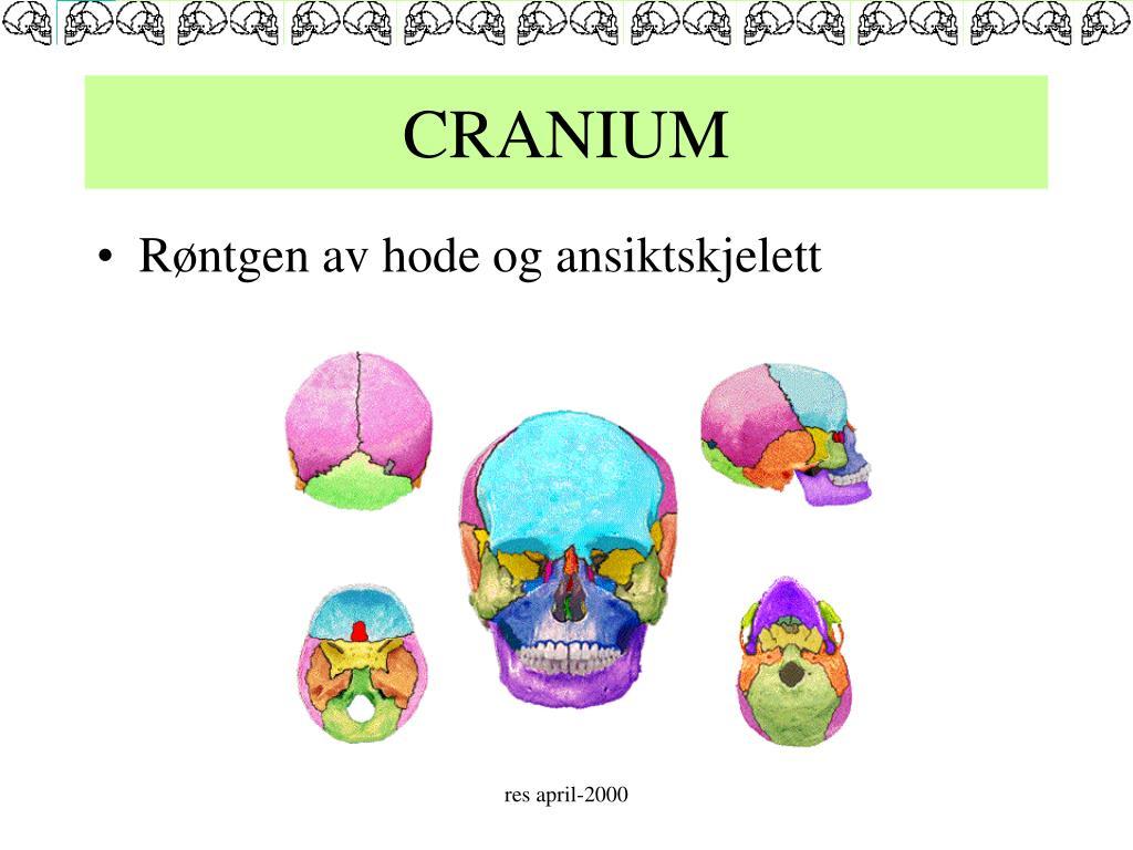 cranium l.