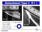 detachment type i h