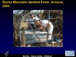 rocky mountain spotted fever arizona 2004