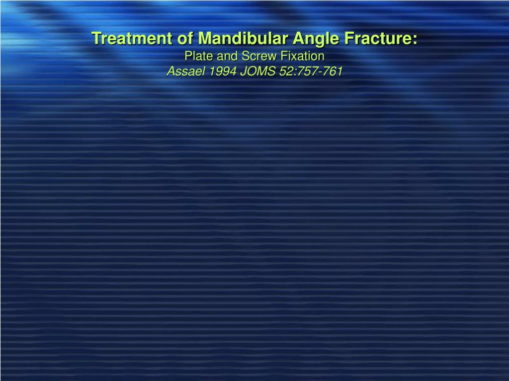 Treatment of Mandibular Angle Fracture: