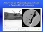 aneurysms are weakened areas not able to receive more needlesticks