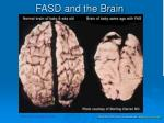 fasd and the brain1