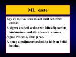 ml esete13