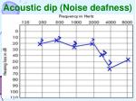 acoustic dip noise deafness