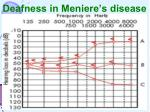 deafness in meniere s disease