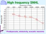 high frequency snhl