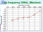 low frequency snhl meniere