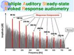 m ultiple a uditory st eady state e voked r esponse audiometry75