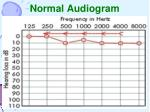 normal audiogram