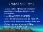 causas arritmias