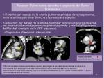 recesos pulmonares derecho e izquierdo del seno transverso
