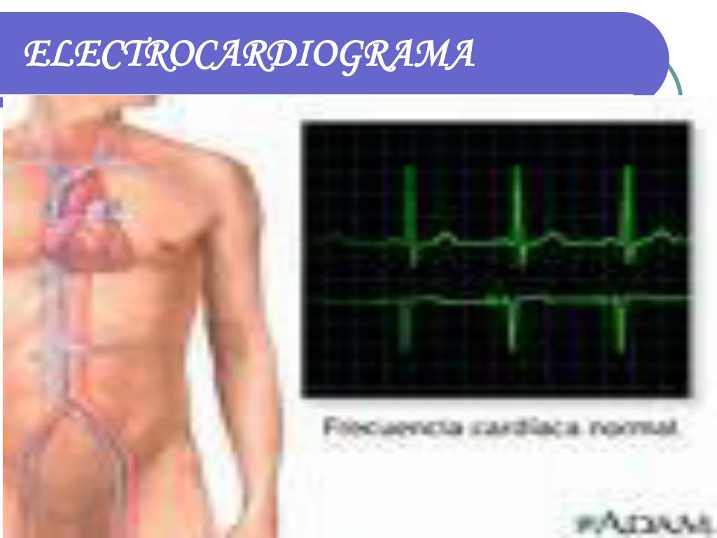 electrocardiograma l.