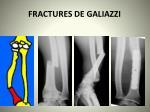 fractures de galiazzi26