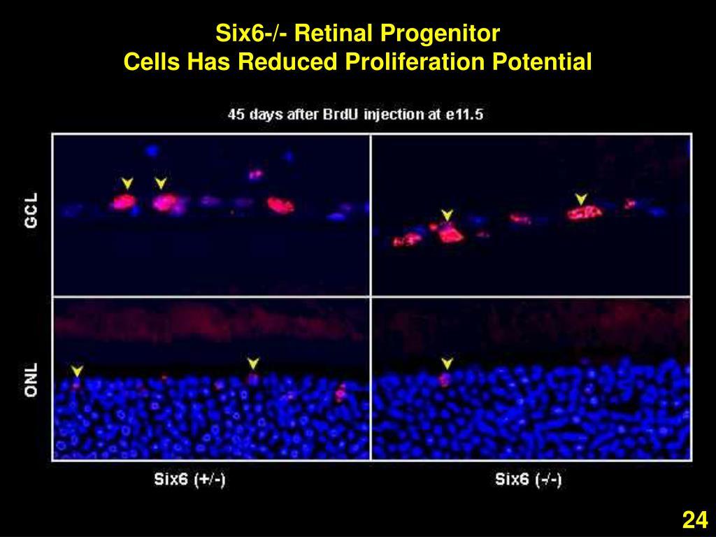 Six6-/- Retinal Progenitor