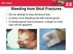 bleeding from skull fractures