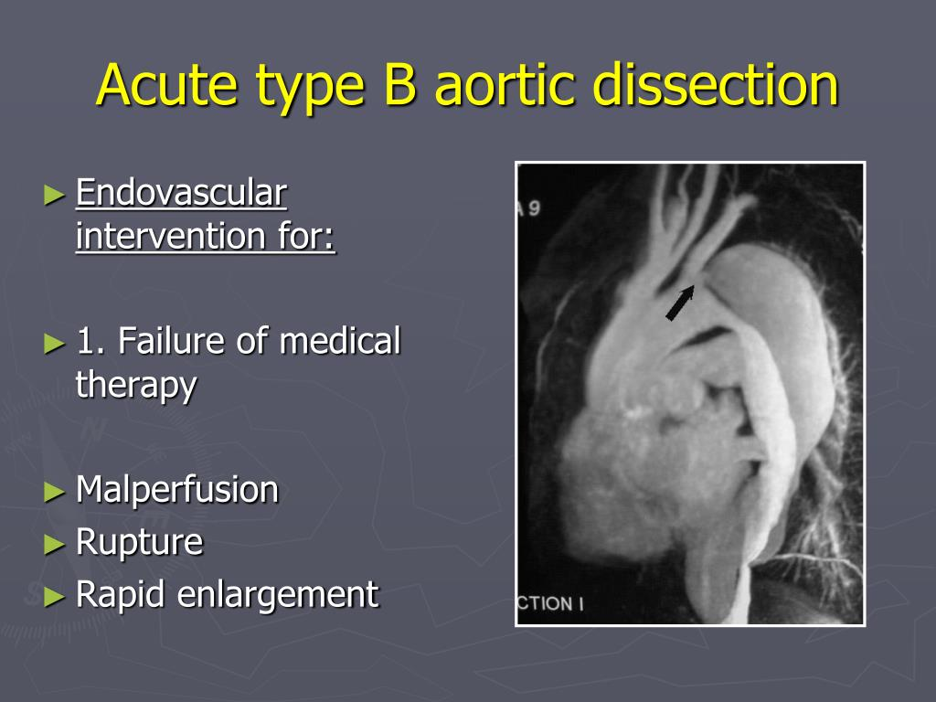Acute type B aortic dissection