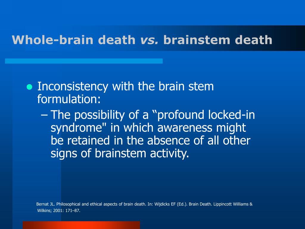 whole brain death standard