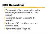 ekg recordings