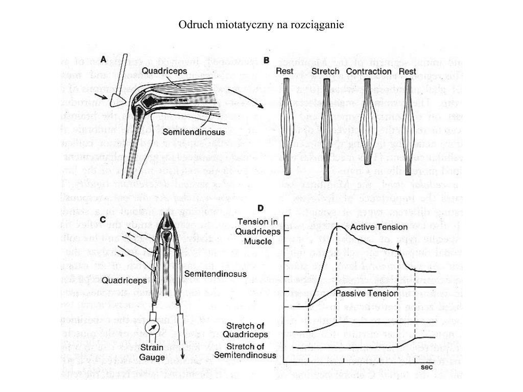 odruch miotatyczny na rozci ganie l.
