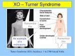 xo turner syndrome