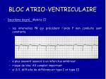 bloc atrio ventriculaire28