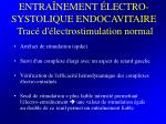 entra nement lectro systolique endocavitaire trac d lectrostimulation normal