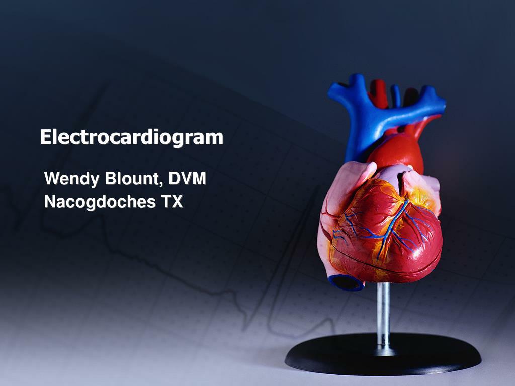 electrocardiogram l.