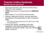 treacher collins syndrome mandibulofacial dysostosis