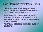 third degree atrioventricular block