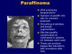 paraffinoma